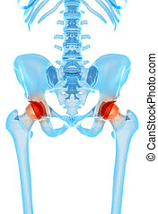 Painful hip