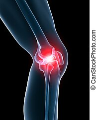 painful knee - 3d rendered illustration of a highlighted ...