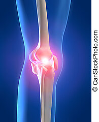painful knee - 3d rendered x-ray illustration of a ...