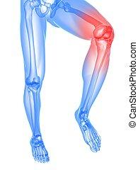 painful knee illustration