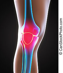 Painful Knee Illustration