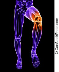 painful knee illustration - 3d rendered illustration of a...