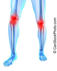 painful knee joints - 3d rendered illustration of human legs...