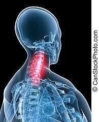 painful neck - 3d rendered illustration of a transparent ...