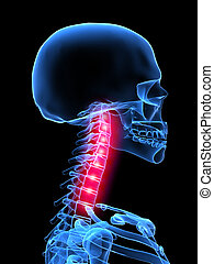 painful neck - 3d rendered x-ray illustration of highlighted...