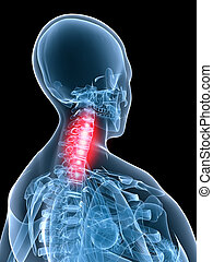 painful neck - 3d rendered illustration of a transparent...