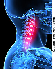 painful neck - 3d rendered x-ray illustration of human...