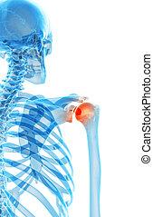 Painful shoulder