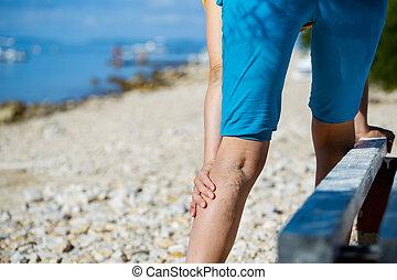 Painful varicose veins - Woman touching painful varicose...