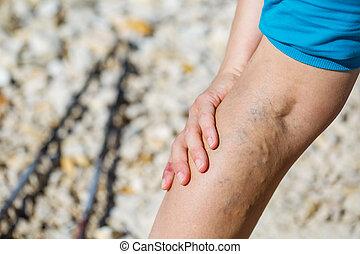 Painful varicose veins - Woman touching painful varicose ...
