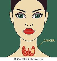 pajzsmirigy, nő, rák