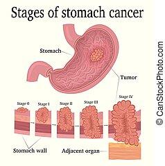palcoscenici, cancro stomaco