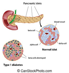 Pancreatic islet normal and type 1 diabetic, eps8
