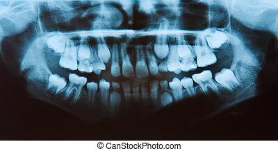 panorámico, radiografía dental, todos, dientes, en, vista.