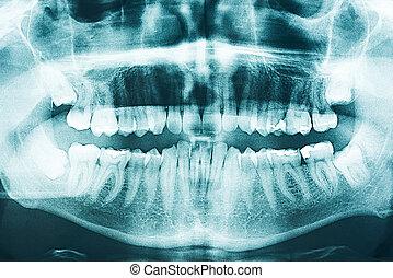 panorâmico, raio x dental
