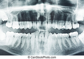 panoramatický, zubní x- vyzařovat