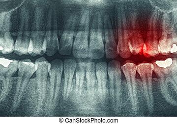panoramatický, zubní xray