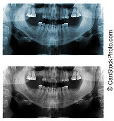 Panoramic dental X-Ray images