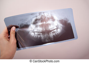 Panoramic dental x-ray of child photo with milk teeth and first molar teeth. in doctor hand. selective focus. Health care, dental hygiene and happy childhood concept.