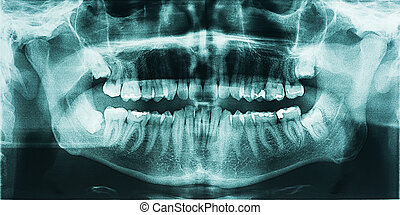 Panoramic Dental X-Ray