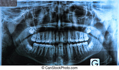 panoramic x-ray of a mouth, with intact wisdom teeth: Panoramic radiography, also called panoramic x-ray, is a two-dimensional dental x-ray examination that captures the entire mouth in a single image, including the teeth, upper and lower jaws, surrounding structures and tissues. This examination is...