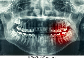 Panoramic dental xray - Panoramic dental X-Ray, with red...