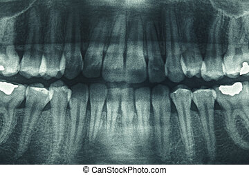 Panoramic dental xray