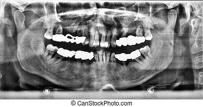 Panoramic x-ray image of teeth
