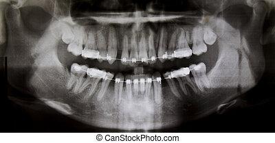 panoramisch, dentale röntgenaufnahme