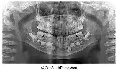 panoramisch, dentale röntgenaufnahme, von, kind, -, 7, jahre