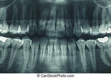 panoramisch, dentale xray