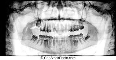 panoramisch, tandröntgenstraal
