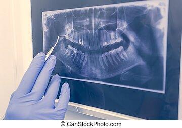 panoramisch, zahnmedizinischer röntgenstrahl