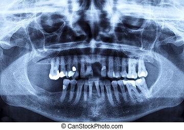 Panorex exposure of a damaged set of teeth
