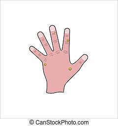 papilloma, verruga, mano humana, ilustración, izquierda, médico, afectado, eliminación, virus