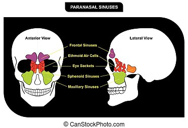 Paranasal Sinuses Parts included Frontal Sphenoid Maxillary...