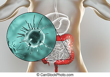 Parasitic infection of intestine, 3D illustration showing...