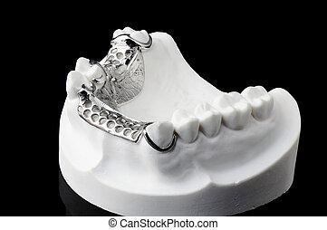 parcial, dentadura, en, fondo negro