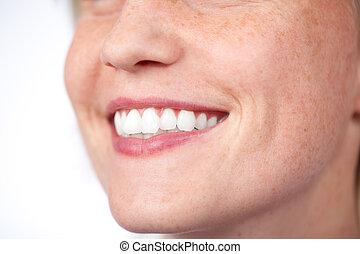 parfait, blanc, sourire, dents