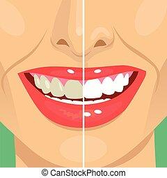 parfait, dentaire, après, bleaching., blanchir, dents, sourire, avant, soin