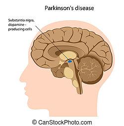 parkinson's, 疾病, eps8