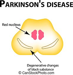 Parkinson's disease. Degenerative changes in the brain are a...