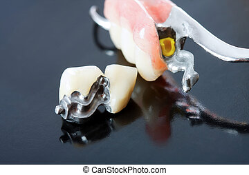 Part of a scheletal prosthesis that replaces missing teeth through special clamping systems and it can be removed by the pacient - part of a series.