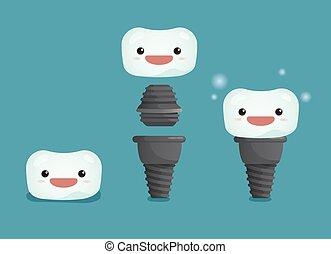 paso, dental, 3, implante, diente