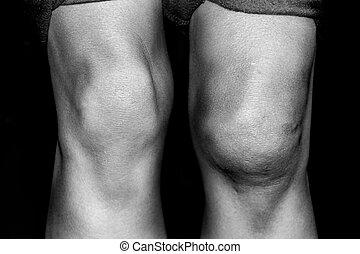 patellar, porwany, pośredni, wynikający, kolano, dyslokacja