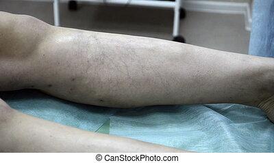 patiënt, leg., medisch, sclerotherapy, injectie, procedure