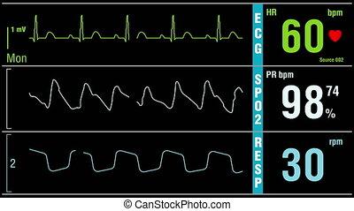 Patient monitor displays medical exam vital signs - Looped:...