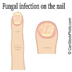 paznokieć, fungal, zakażenie
