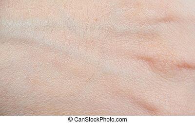 peau humaine