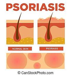 peau, psoriasis, normal, comparaison, couches, détaillé
